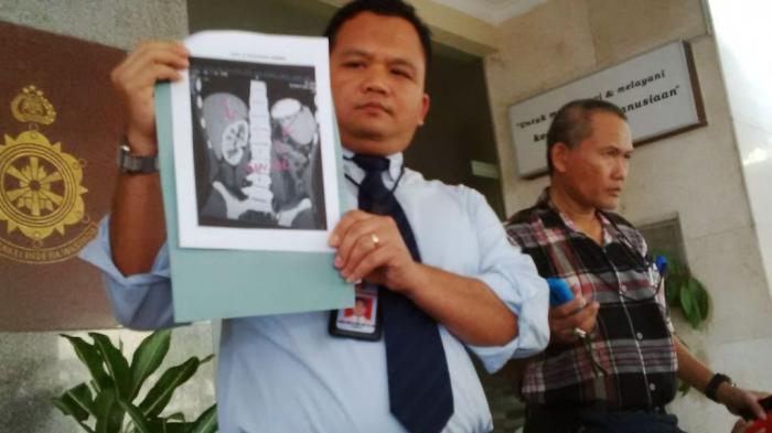 Terbongkar Kasus Jual Beli Ginjal Manusia Satu Ginjal Rp 70 Juta Konsumennya Warga Singapura Tribunnews Com Mobile
