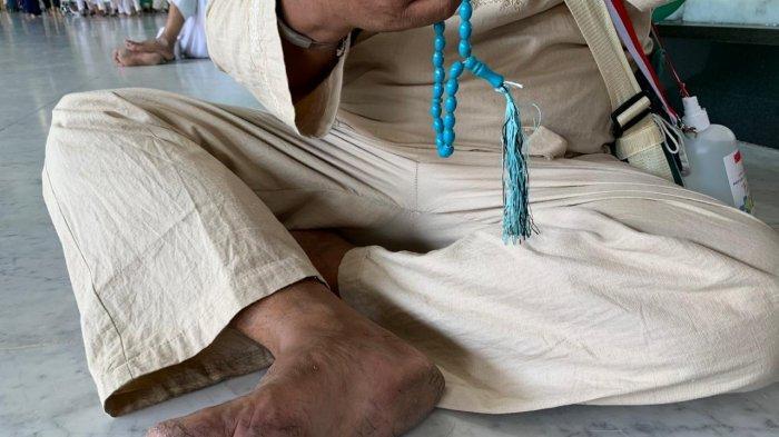 Kaki salah seorang jemaah haji Indonesia melepuh ketika dijumpai di Masjidil Haram, Senin (22/7/2019). Kaki jemaah haji melepuh karena kehilangan sandal dan kebiasaan tak pakai sandal ketika di kampungnya