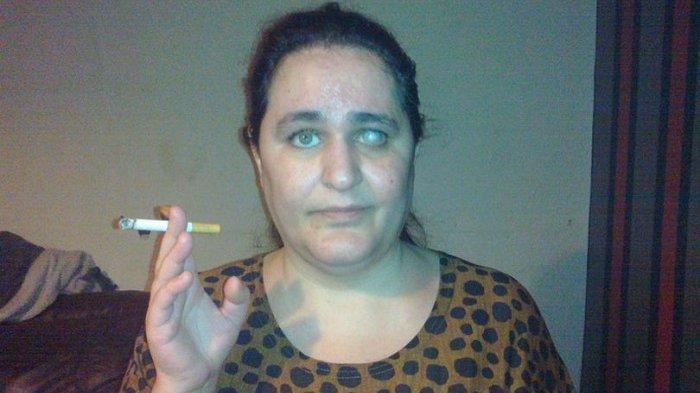 Kecanduan, Ibu Ini Senang Makan Kapur Tulis dan Puntung Rokok Saban Harinya