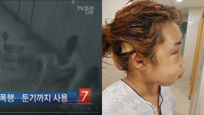 Dulu Kasusnya Viral, Korban Bullying di Korea Kini Berprestasi di Sekolah, Rambutnya Sudah Panjang