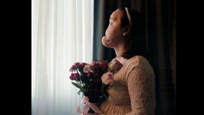 Kisah Katie Stubblefield, Wanita yang Kehilangan Separuh Wajah Akibat Percobaan Bunuh Diri