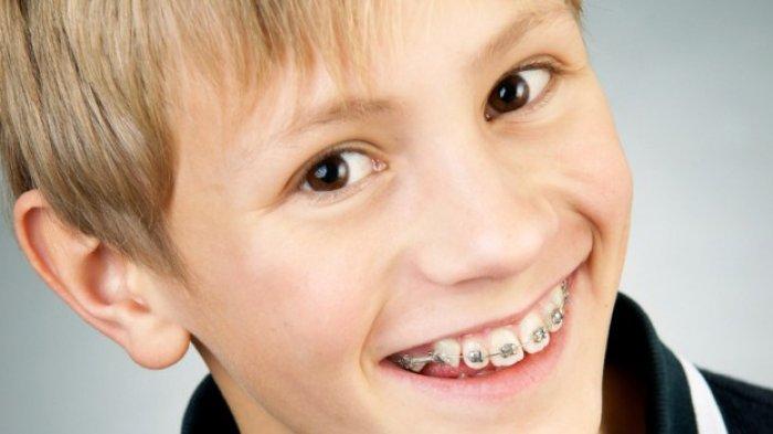 Boleh Tidak Anak Pasang Kawat Gigi? Ini Penjelasan Ahli