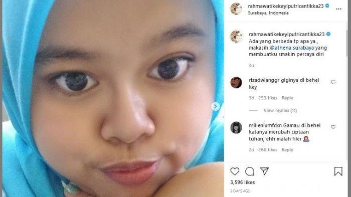 Kekey itu baru saja melakukan filler hidung di sebuah klinik kecantikan di Surabaya.