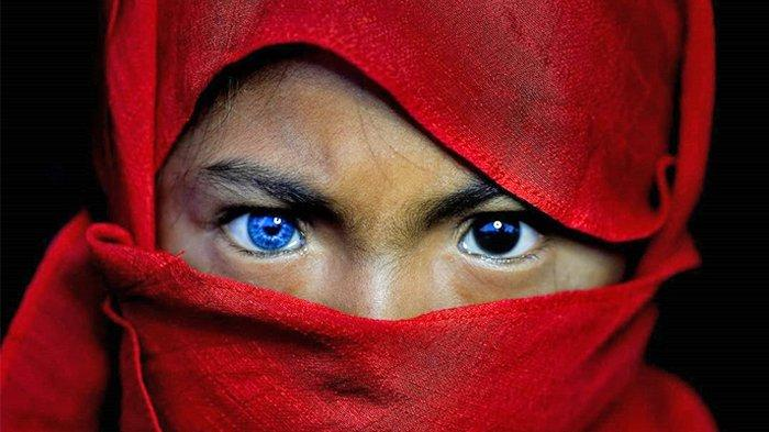 Kelainan Genetik Sindrom Waardenburg di Balik Indahnya Mata Biru Anak-anak di Kendari