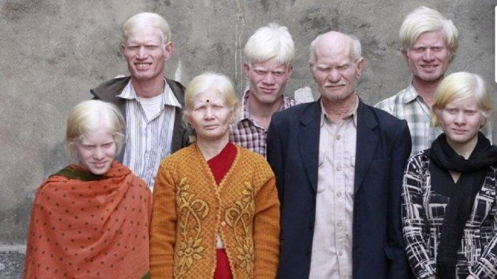12 Potret Orang dengan Kelainan Genetik Unik, Ada yang Mata Warna Ungu hingga Jari Kaki Berselaput