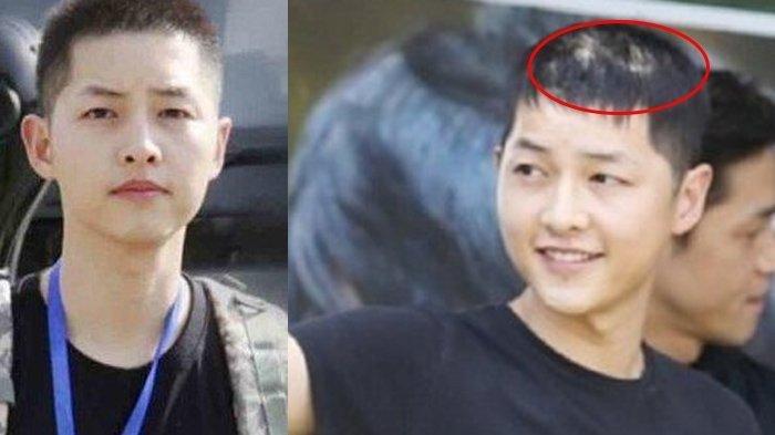 Viral di Korea Foto Song Joong Ki Botak Setelah Ceraikan Song Hye Kyo, Depresi? Ini Faktanya