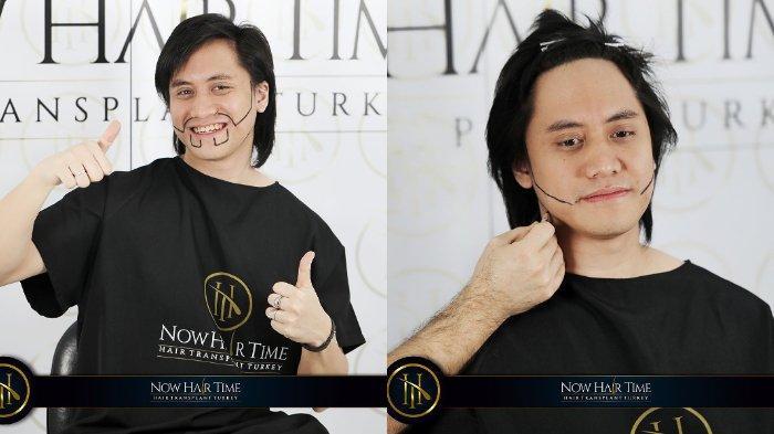 Ngaku Insecure dengan Penampilannya, Kevin Aprilio Lakukan Transplantasi Rambut di Jidat dan Berewok