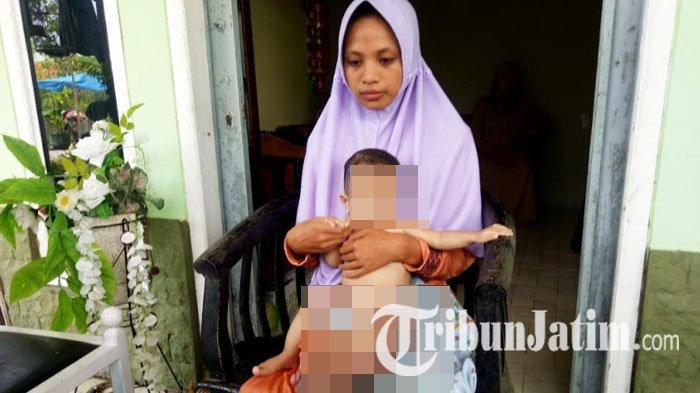 Kisah Rani, Bayi 7 Bulan Asal Madura Idap Tumor Limfangioma, Tiap Hari Kaki Semakin Bengkak