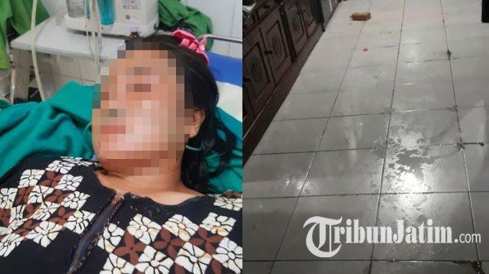 Wajahnya Disiram Air Keras Oleh Suami, Wanita Ini Buka Pintu Maaf dan Cabut Laporan Polisi