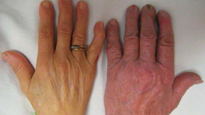 kulit pucatt anemia