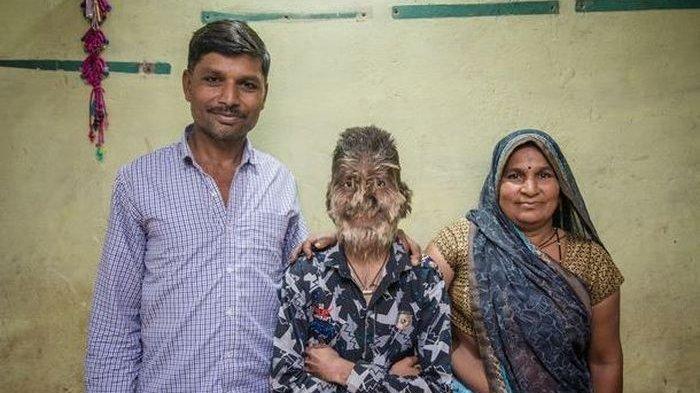 Seorang Remaja Dipanggil Monyet dan Dilempari Batu karena Kondisinya