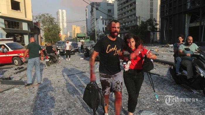 Warga yang terluka berjalan di dekat lokasi terjadinya ledakan dahsyat di kawasan pelabuhan, di Kota Beirut, Lebanon, Selasa (4/8/2020) waktu setempat. Dua ledakan besar terjadi di Kota Beirut menyebabkan puluhan orang meninggal, ratusan lainnya luka-luka, dan menimbulkan berbagai kerusakan pada bangunan di kawasan ledakan hingga radius puluhan kilometer. Penyebab ledakan masih dalam penyelidikan pihak yang berwenang. AFP/STR