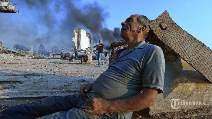 Seorang pria terduduk menunggu pertolongan di dekat lokasi ledakan dahsyat yang terjadi di kawasan pelabuhan, di Kota Beirut, Lebanon, Selasa (4/8/2020) waktu setempat. Dua ledakan besar terjadi di Kota Beirut menyebabkan puluhan orang meninggal, ribuan lainnya luka-luka, dan menimbulkan berbagai kerusakan pada bangunan di kawasan ledakan hingga radius puluhan kilometer. Penyebab ledakan masih dalam penyelidikan pihak yang berwenang. AFP/STR