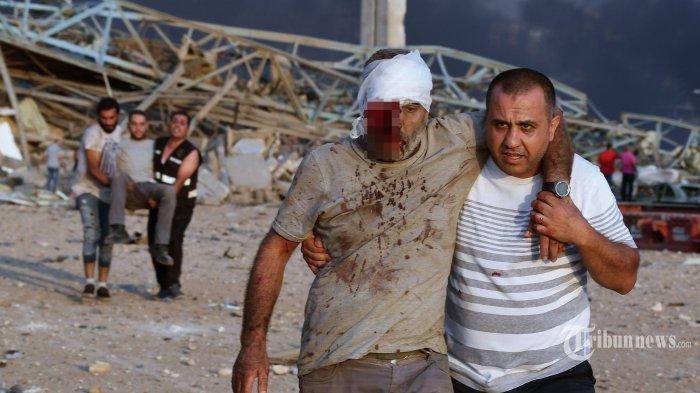 Warga yang terluka dievakuasi dari lokasi ledakan dahsyat yang terjadi di kawasan pelabuhan, di Kota Beirut, Lebanon, Selasa (4/8/2020) waktu setempat. Dua ledakan besar terjadi di Kota Beirut menyebabkan puluhan orang meninggal, ribuan lainnya luka-luka, dan menimbulkan berbagai kerusakan pada bangunan di kawasan ledakan hingga radius puluhan kilometer. Penyebab ledakan masih dalam penyelidikan pihak yang berwenang. AFP/STR