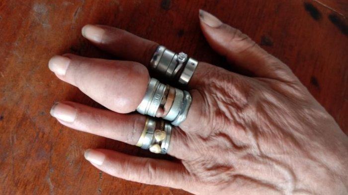 Bantu Pria 60 Tahun Lepaskan 18 Cincin, Petugas Gulkarmat Jakpus Gunakan Gerinda Mini