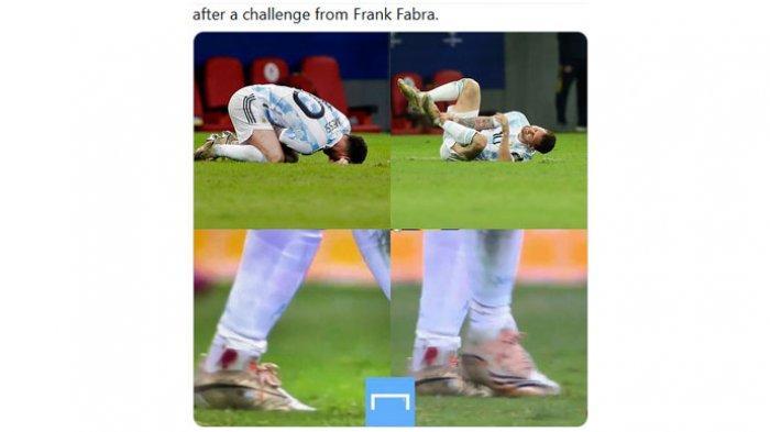 Kapten Timnas Argentina, Lionel Messi merasa kesakitan dan memegang kakinya dalam pertandingan Semifinal Copa America 2021 saat menghadapi Kolombia yang berakhir kemenangan untuk Argentina melalui babak adu penalti, Rabu (7/7/2021).