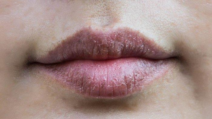 Kebiasaan yang Menyebabkan Bibir Menghitam, Salah Satunya Jarang Eksfoliasi