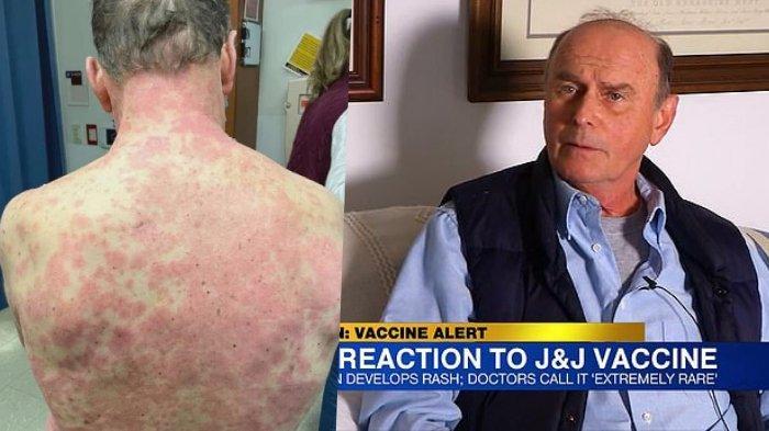 Alami Reaksi Langka setelah Vaksin Covid-19 Johnson & Johnson, Pria di Virginia Masuk UGD