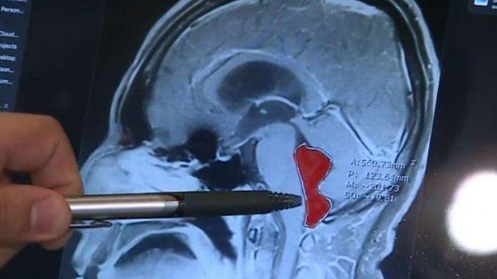 Cacing Pita Bersarang di Otak Pria Ini 10 Tahun, Diduga Penyebabnya Ini