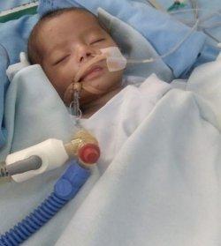 Yuk Bantu Biaya Pengobatan Nauren, Bayi 3 Bulan Penderita Pneumonia dan Bocor Jantung