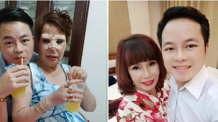 Biar Terlihat Cantik di Mata Suami Berodongnya, Wanita Vietnam Berusia 62 Tahun Ini Operasi Plastik