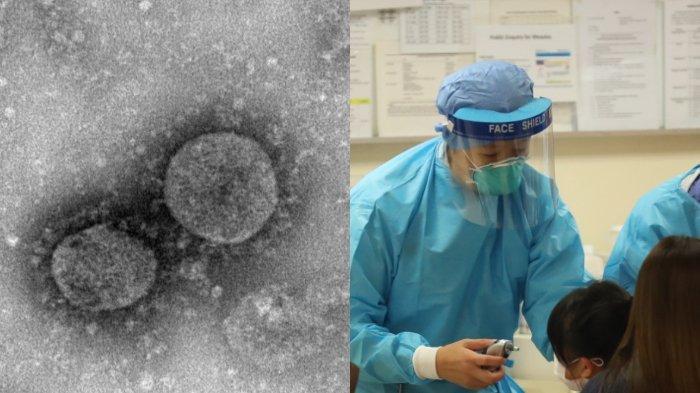 ILUSTRASI - Komisi Kesehatan Nasional China (NHC) menambahkan gejala baru virus corona dalam pedoman yang dirilis Rabu (5/2/2020) kemarin.