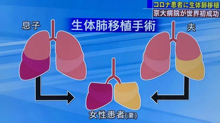 Operasi Transplantasi Paru Hidup Pertama di Dunia Kepada Pasien Corona oleh Universitas Kyoto Jepang