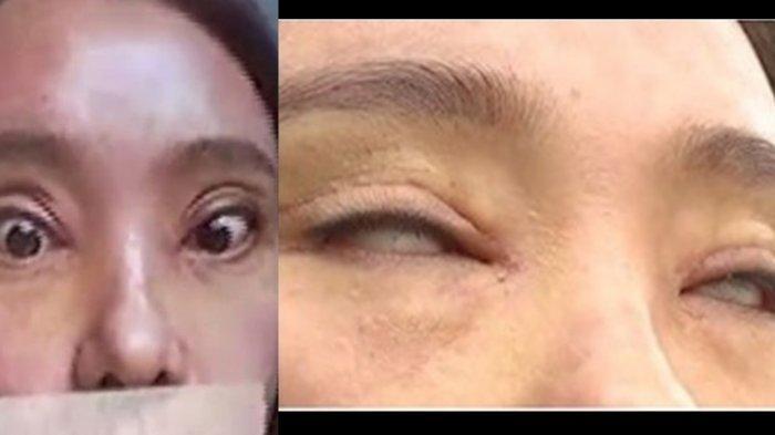 Percantik Diri, Wanita Ini Justru Tak Bisa Tutup Matanya usai Operasi Plastik