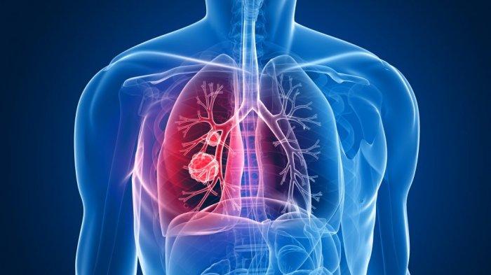 Kemenkes: Indonesia Sumbang Dua Pertiga Kasus TBC di Dunia