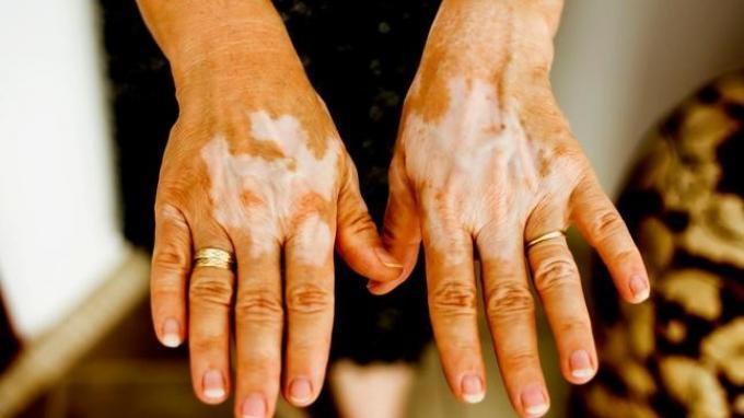 Penampakan kulit tangan pasien penderita vitiligo.