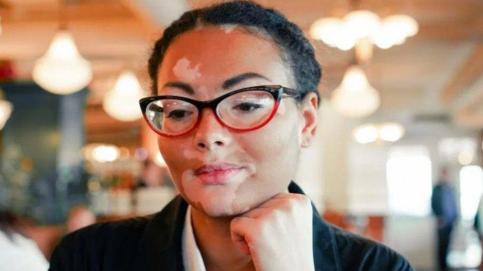 Yuk Kenali Vitiligo, Penyakit Depigmentasi Kulit yang Dapat Dicegah Jika Ditangani Lebih Dini