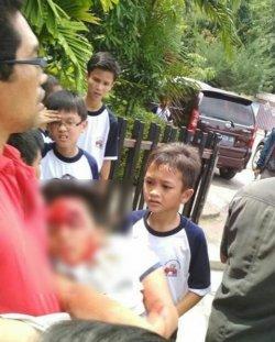 Kepala Seorang Pelajar Terluka Tertimpa Gawang Futsal di Sekolahnya