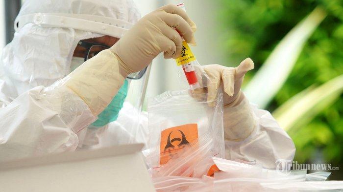 Korut Kembangkan Alat PCR Sendiri untuk Tes Covid-19