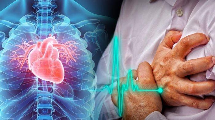 Kabar Baik untuk Penderita Gagal Jantung yang Ingin Bepuasa Ramadan