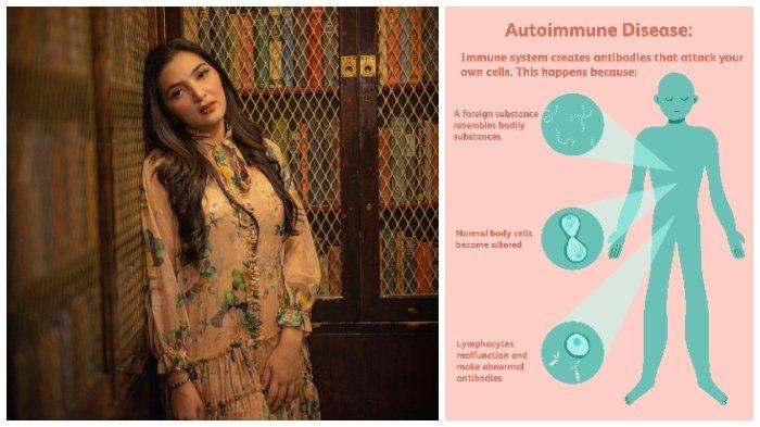 Pengertian, Tipe, Gejala dan Penyebab Penyakit Autoimun, penyakit yang diderita istri Anang Hermansyah, Ashanty.
