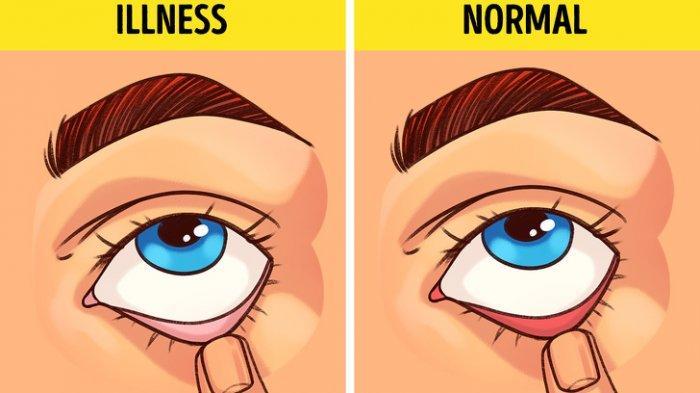 Tes Kesehatan: Tanda Sederhana Ini Ternyata Dapat Ungkapkan Risiko Penyakit dalam Tubuhmu