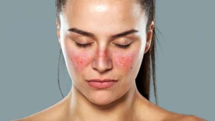 Lupus Disebut ''Penyakit Seribu Wajah'', Ketahui Penyebab dan Pencegahannya