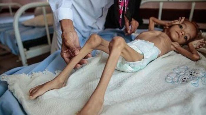 Tiga Tahun Terakhir, 85 Ribu Anak di Yaman Mati Kelaparan
