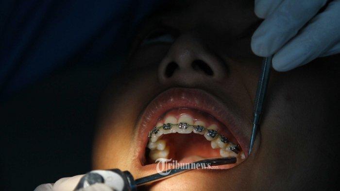 4 Bahan Alami untuk Bantu Bersihkan Karang Gigi, di Antaranya Baking Soda