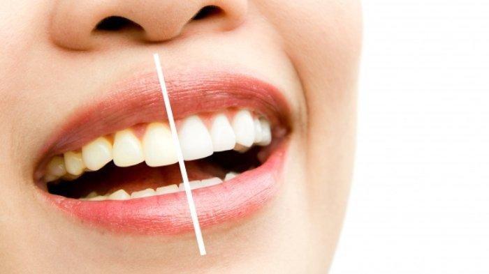 5 Cara Alami untuk Memutihkan Gigi, Simak juga Manfaatnya