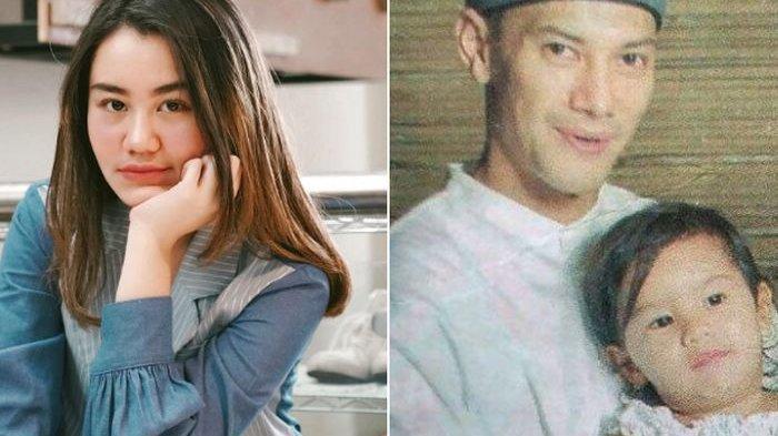 Lihat Ayahnya Kesakitan Sambil Pegang Dada Kiri, Aaliyah Massaid Awalnya Mengira Bercanda