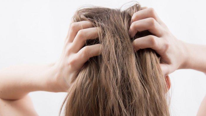 5 Bahan Alami untuk Mengatasi Rambut Berketombe, Coba Pakai Lidah Buaya hingga Minyak Kelapa