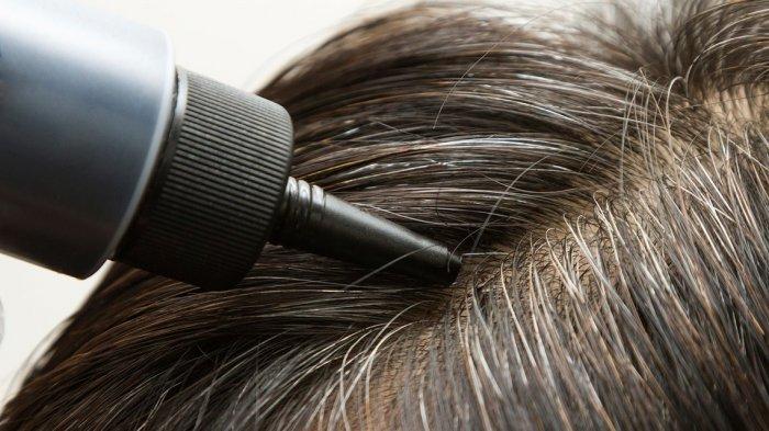 Masih Muda Tapi Rambut Sudah Beruban? Ketahui Penyebabnya