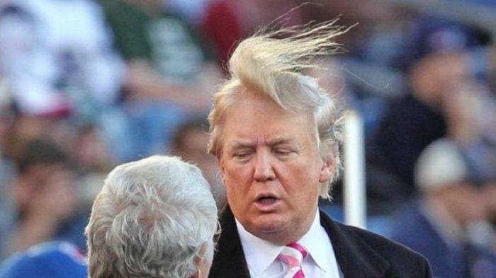 Terlihat Lebat Dan Pirang Rambut Donald Trump Sebenarnya Botak Tribunnews Com Mobile