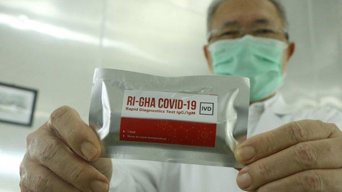 Alat Rapid Test Buatan Dalam Negeri Dibanderol Rp 75.000, Apa Bedanya dengan Produk Impor?