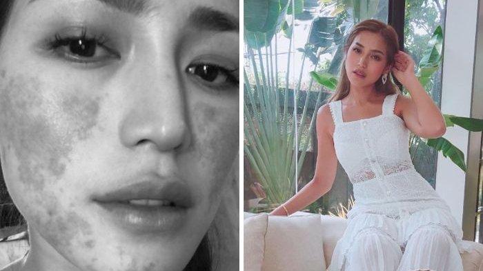 Wajah Jessica Iskandar Alami Peradangan, Richard Kyle Beri Semangat Sang Kekasih
