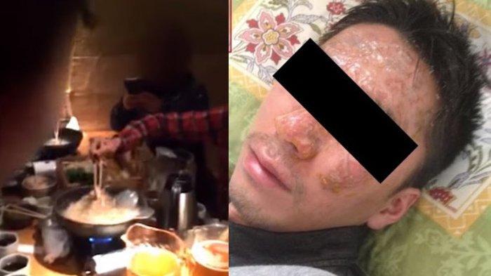 Direktur Benamkan Kepala Karyawannya ke Panci Mendidih saat Makan Bersama, Videonya Viral