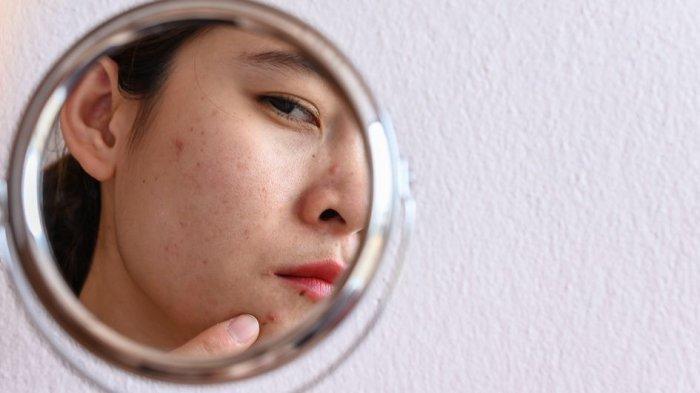 Selain Air Panas, Ini 3 Alasan Utama Penyebab Skin Barrier Rusak