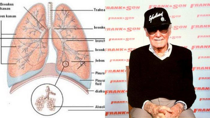 Mengenal penyakit pneumonia yang diderita Stan Lee