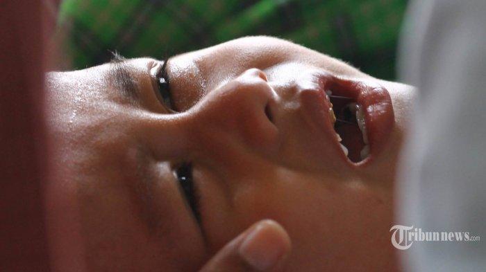 Mitos Pantangan Makan Daging pada Laki-laki setelah Sunat, Ini Penjelasan Dokter Spesialis Bedah